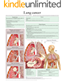 Lung cancer e-chart: Full illustrated (English Edition)