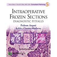 Intraoperative Frozen Sections: Diagnostic Pitfalls (Consultant Pathology Book 5)