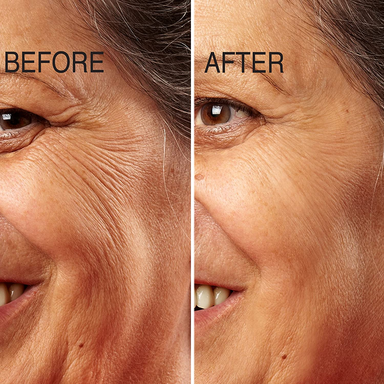 Pretty Tips retinol giảm nếp nhăn