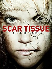 Scar Tissue