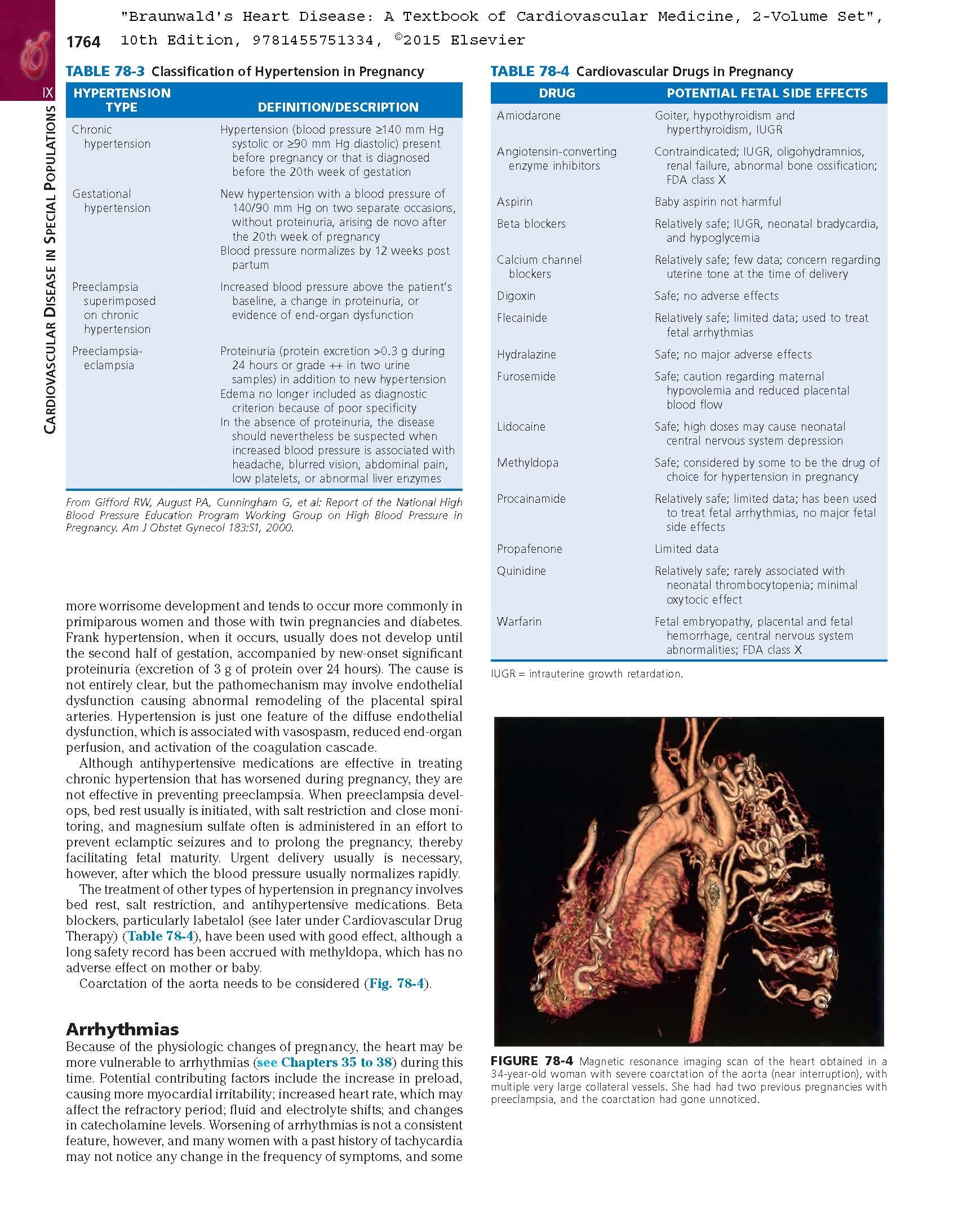 Braunwalds Heart Disease: A Textbook of Cardiovascular Medicine, 2-Volume Set, 10e: Amazon.es: Douglas L. Mann MD, Douglas P. Zipes MD, Peter Libby MD PhD, ...
