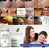 Acne Treatment Supplement: Top Rated Acne Pills for Women, Men and Teens