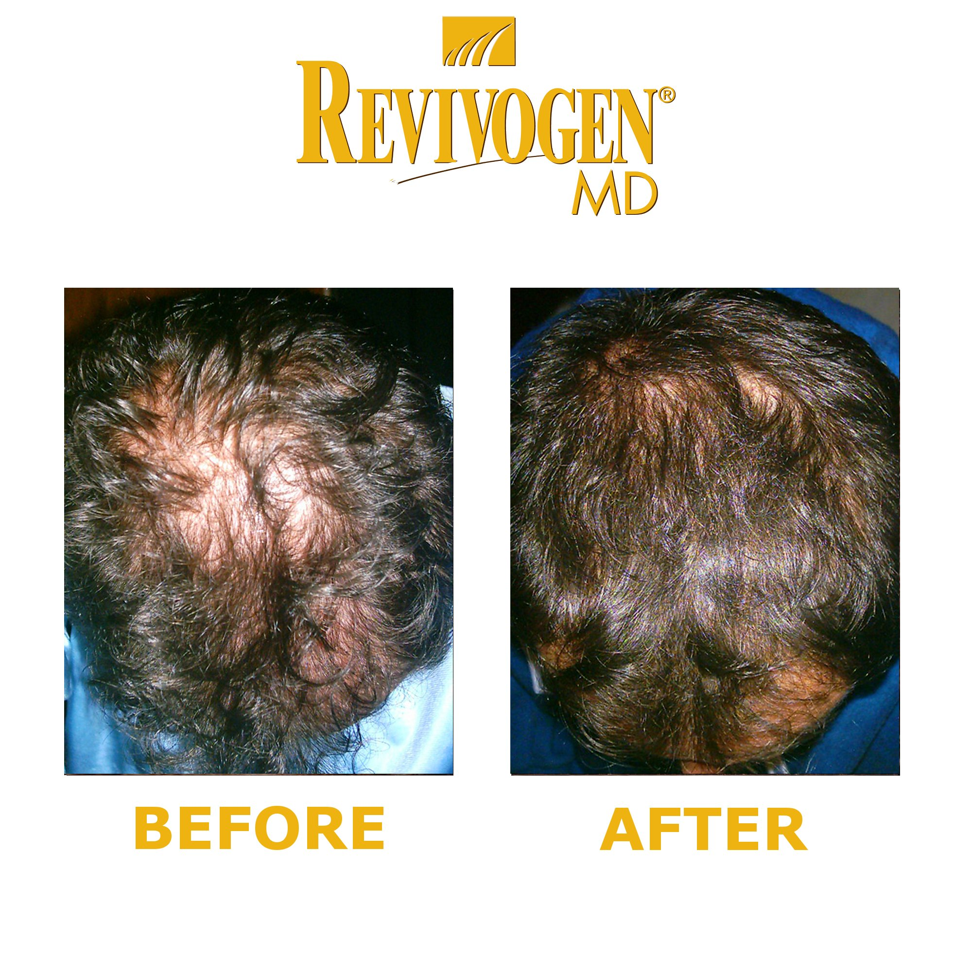 Revivogen Scalp Therapy MD (3 month supply) by Revivogen MD (Image #4)