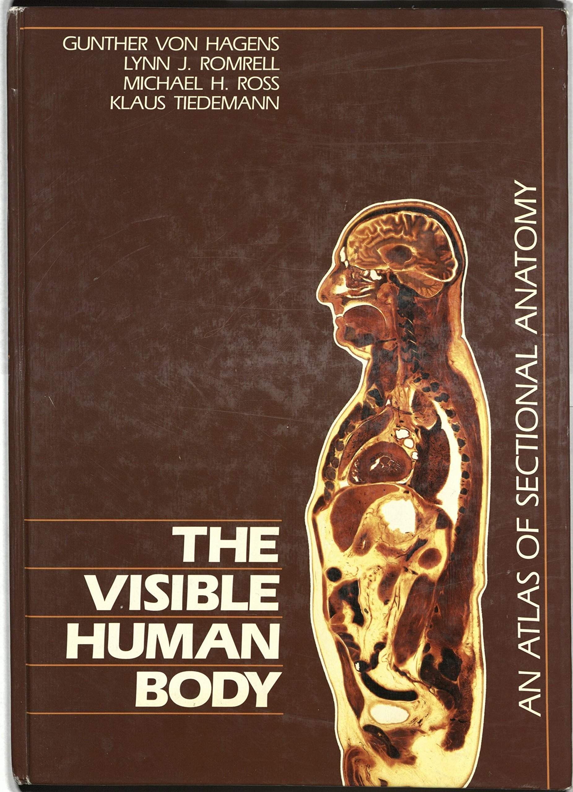 Visible Human Body: An Atlas of Sectional Anatomy: Gunther Von ...