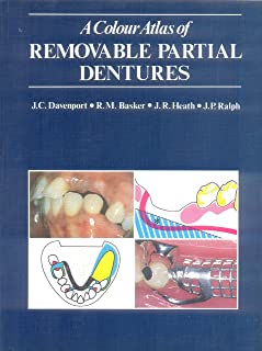 a clinical guide to removable partial denture design clinical guide rh amazon co uk a clinical guide to removable partial denture design pdf free clinical guide to removable partial denture design