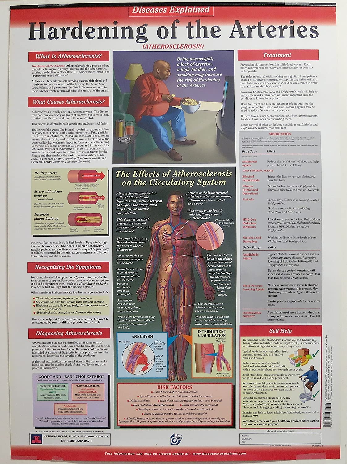Hardening of the Arteries Poster ...