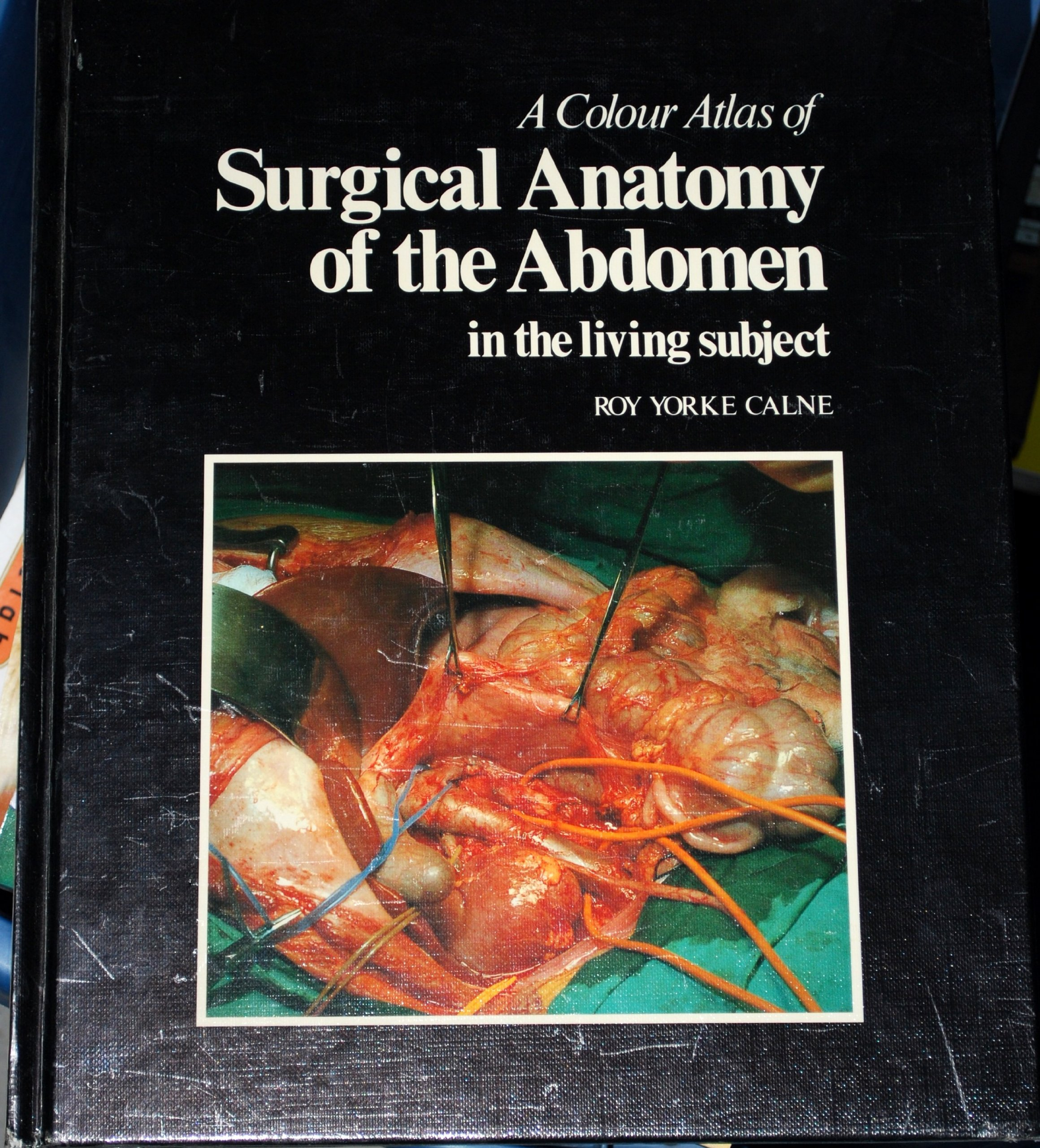 A Colour Atlas Of Surgical Anatomy Of The Abdomen In The Living
