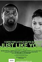 Just Like You: I Care for a Child Burn Survivor