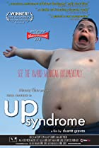 Image of Up Syndrome