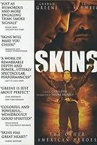 Image of Skins