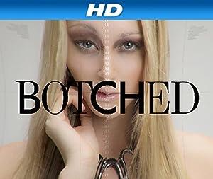 Botched Season 5 Episode 4