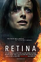 Image of Retina