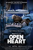 Image of Open Heart