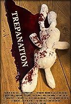Primary image for Trepanation