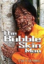 The Bubble Skin Man