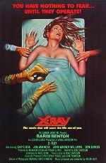 X Ray(2017)