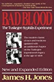 Bad blood : the Tuskegee syphilis experiment / James H. Jones