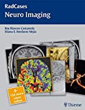 RadCases Neuro Imaging