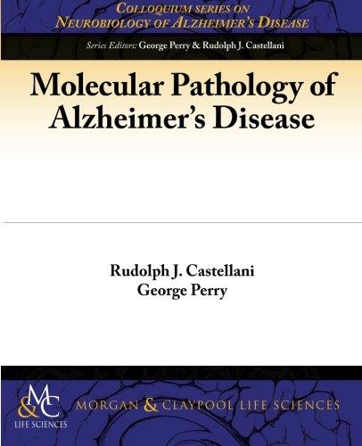 Alzheimers Disease Pdf