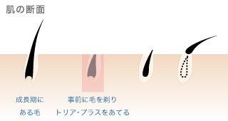 トリア・パーソナルレーザー脱毛器が選ばれる理由_肌への負担は最小限