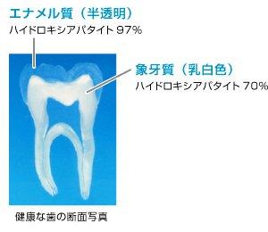 歯の自然な白さ