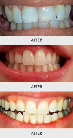 Amazon Com Auraglow Teeth Whitening Kit Led Light 35