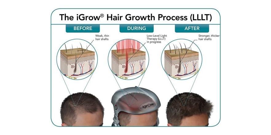 Igrow Laser Hair Growth System