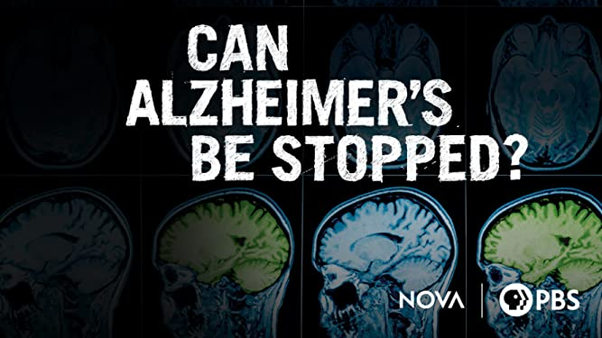 Can Alzheimer's Be Stopped