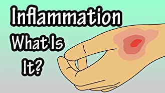 Inflammation, What Is It?