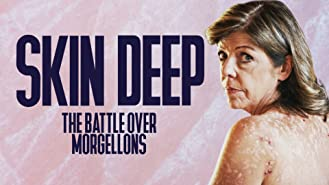 Skin Deep: The Battle Over Morgellons